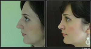 rinoplastie-operatie-estetica-la-nas-caz02-foto1